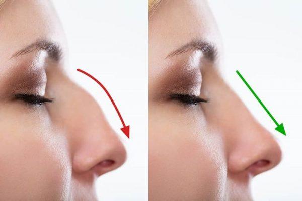 quanto costa rifarsi il naso